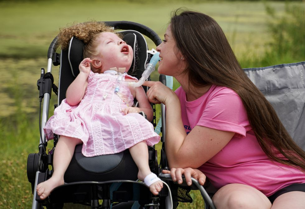 Minnesota girl, 3, living with syndrome diagnosed in fewer than 250 people worldwide
